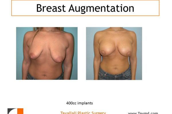 400 cc breast implant for enlargement in woman with droopy breasts