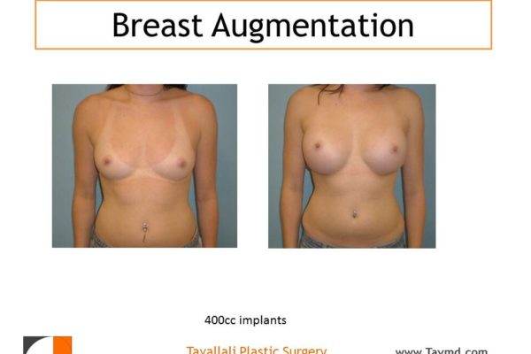Breast augmentation 400 cc implants