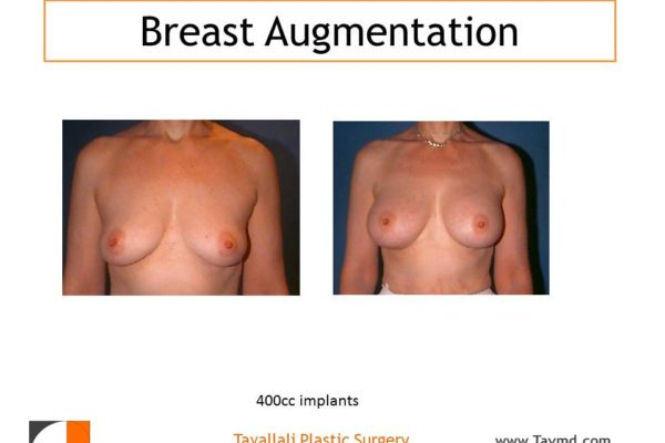 Woman with breast implants with 400 cc