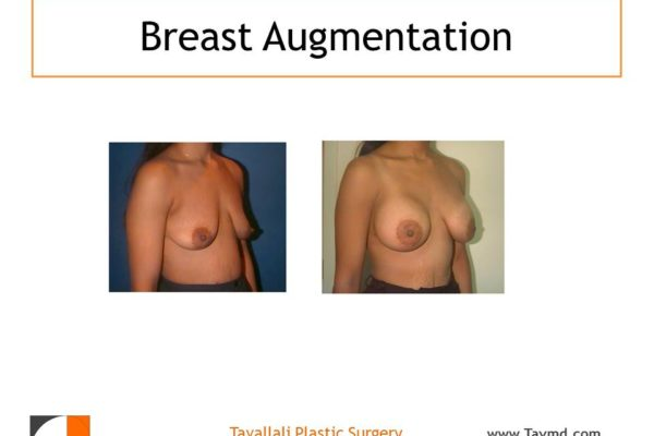 Result of woman with medium breast enlargement