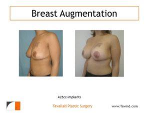 425 cc breast implant augmentation