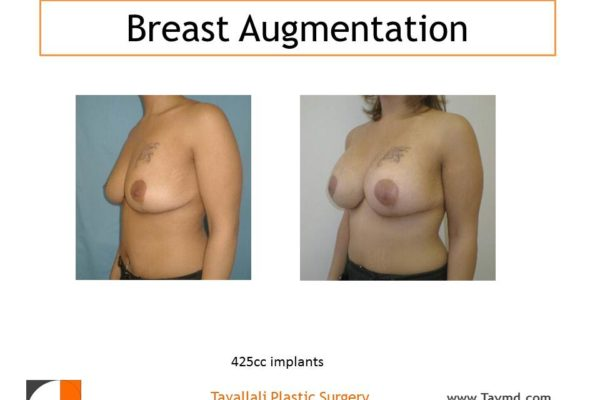 425 cc breast implant augmentation