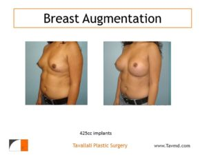 Breast enlargement 425 cc implants