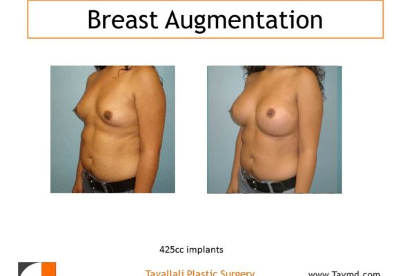 Breast enlargement 425 cc implants