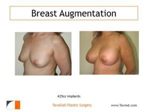 Breast enlargement n woman with 425 cc saline implants