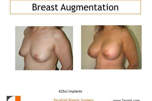 Breast enlargement n woman with 425 cc saline implants