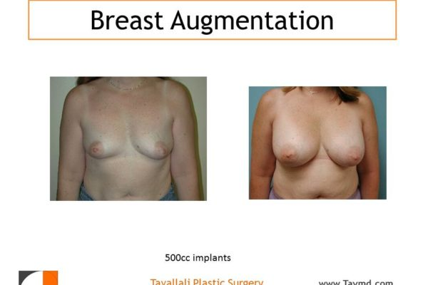 Breast augmentation 500 cc implants
