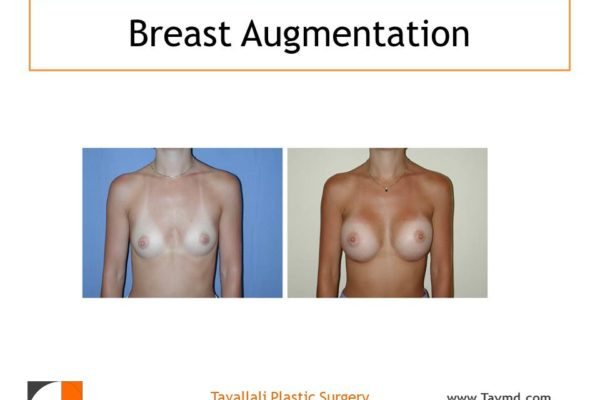 Before & after breast enlargement