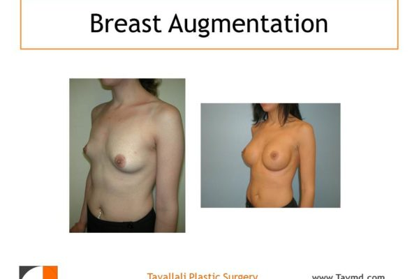 Oblique view Before & after breast augmentation