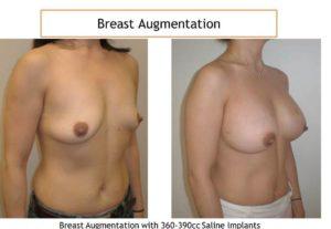 Breast augmentation with 36-390 cc saline implants