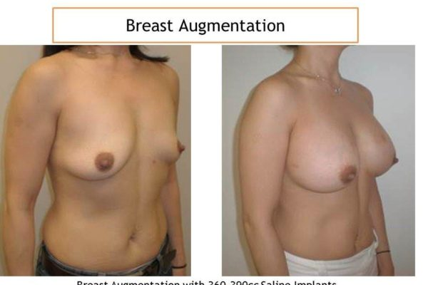 Breast augmentation with 36-390 cc saline implants