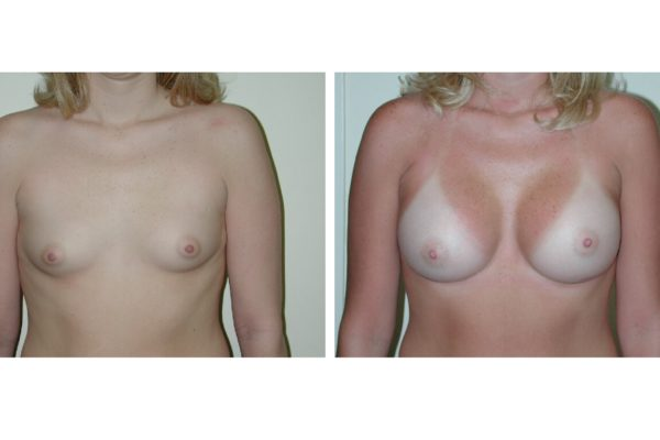 Breast enlargement patient before after
