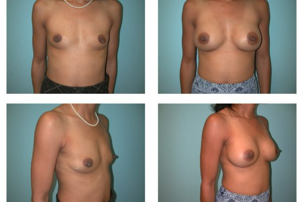 Breast surgery before after with implants