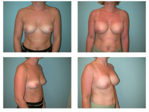 Breast implant enlargement before after surgery