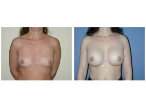 Before and after breast implant surgery with implants