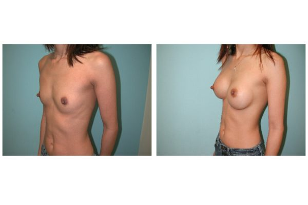 Flat chested woman with breast enlargement surgery