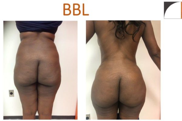 BBL Brazilian buttock lift liposuction abdomen and hips fat injection