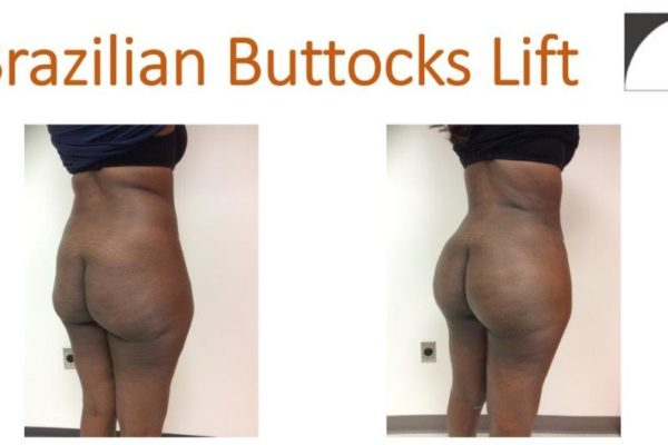 BBL Brazilian buttock lift liposuction abdomen and hips fat injection before after