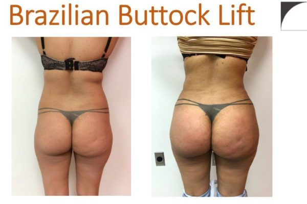 BBL Brazilian buttock lift liposuction hips fat injection