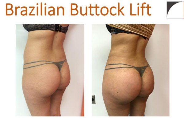 BBL Brazilian buttock lift with lipo of hips