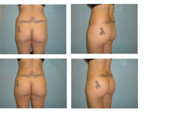 2 viewsBBL Brazilian buttock lift liposuction hips fat injection