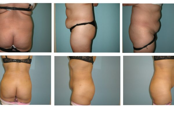 Multiple views liposuction and BBL Brazilian buttock lift