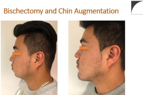 Bischectomy and Chin Surgery before after