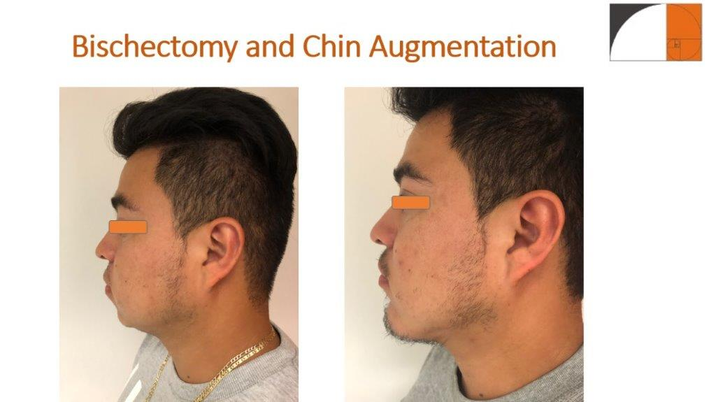 Chin Enlargement