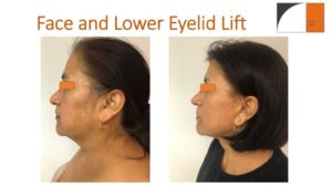 Results of Facelift and lower eyelid lift profile of woman