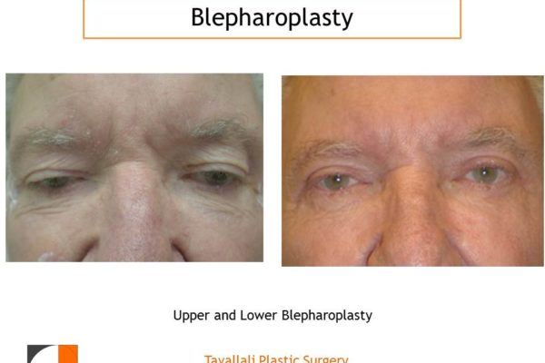 Man with Eyelid lift Blepharoplasty before after