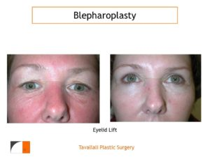 Upper and lower Eyelid lift Blepharoplasty before after woman with wrinkles