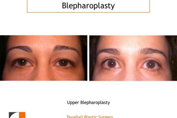Upper Blepharoplasty result