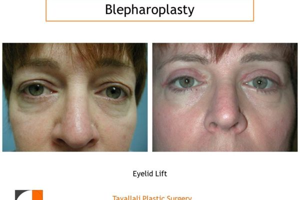 Upper and lower eyelid lift surgery