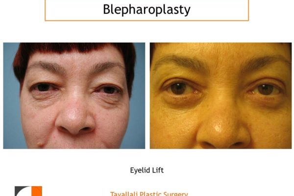 Upper & Lower eyelid surgery before & after photo Northern Virginia