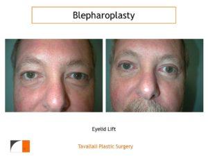 Man with upper blepharoplasty