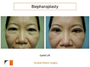 Woman still healing with Eyelid lift Blepharoplasty before after