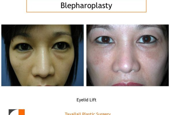 Lower lid fat removal Eyelid lift Blepharoplasty before after