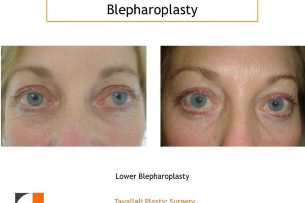 female lower Eyelid lift Blepharoplasty before after