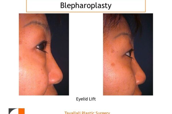 Profile upper and lower eyelid lift