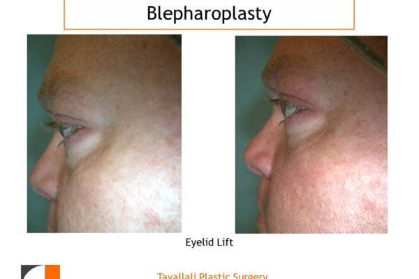 Man with results after lower eyelid lift