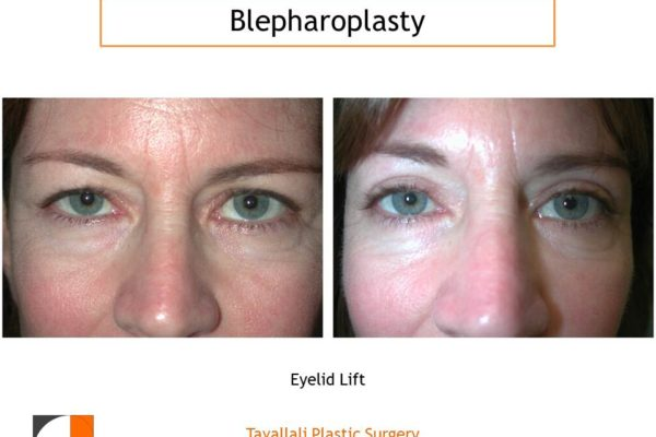 Upper eyelid surgery to remove skin and fat