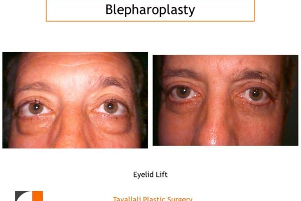Removal of large lower lid fat Man with results after lower eyelid lift