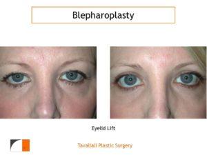 Upper eyelid blepharoplasty result