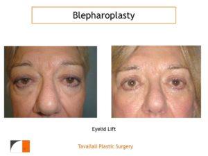 Upper and lower eyelid rejuvenation