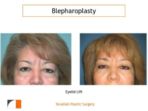 woman's results after lower and upper eyelid lift