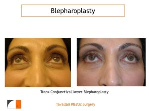 Lower Eyelid lift Blepharoplasty trans-conjuctival before after