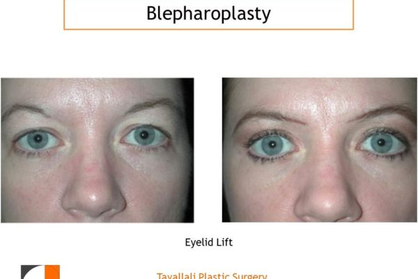 Young woman before after upper lid surgery