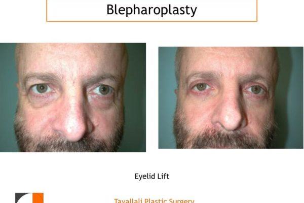 Man before after upper lower eyelid blepharoplasty surgery