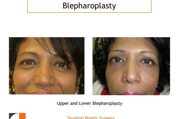 Upper and Lower Eyelid lift Blepharoplasty before after