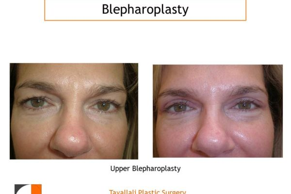 Woman with upper Eyelid lift Blepharoplasty before after